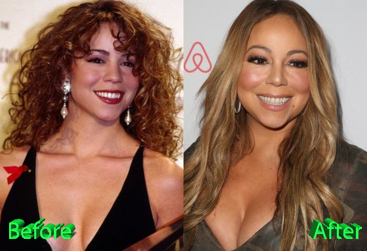 Mariah Carey Before and After Plastic Surgery