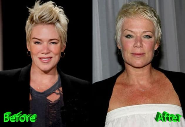 Mia Michaels Before and After Cosmetic Surgery 630x432