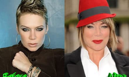 Mia Michaels Plastic Surgery and Rumors and Gossips About It