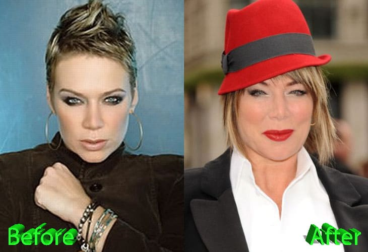 Mia Michaels Before and After Plastic Surgery