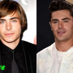 Zac Efron Before and After Cosmetic Surgery 150x150