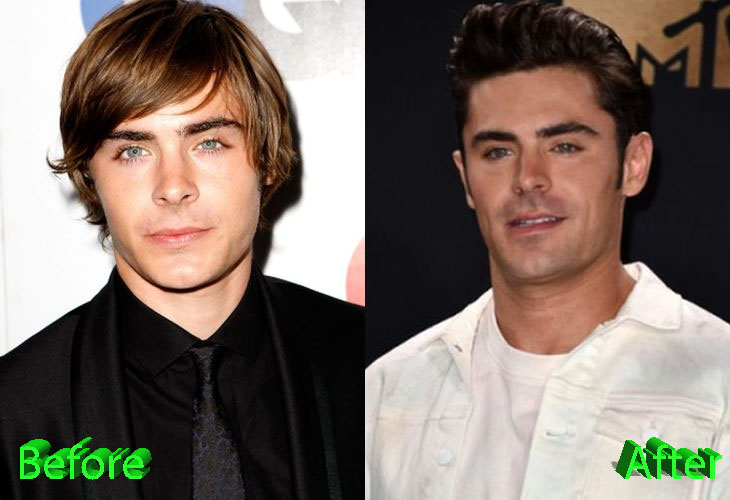 Zac Efron Before and After Cosmetic Surgery