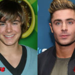 Zac Efron Before and After Plastic Surgery 150x150