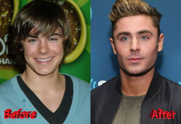 Zac Efron Before and After Plastic Surgery 630x432