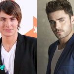 Zac Efron Before and After Surgery Procedure 150x150