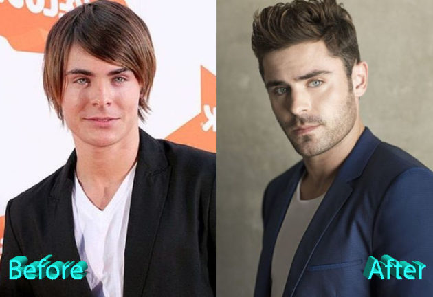Zac Efron Before and After Surgery Procedure 630x432