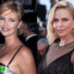 Charlize Theron Before and After Cosmetic Surgery 150x150