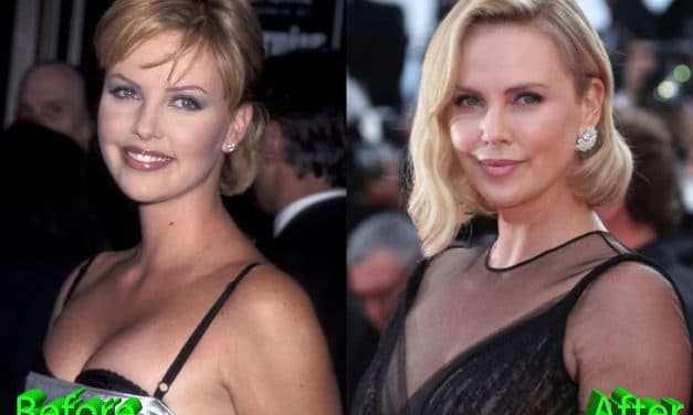 Charlize Theron Plastic Surgery Rumors: True or Just Good Genes