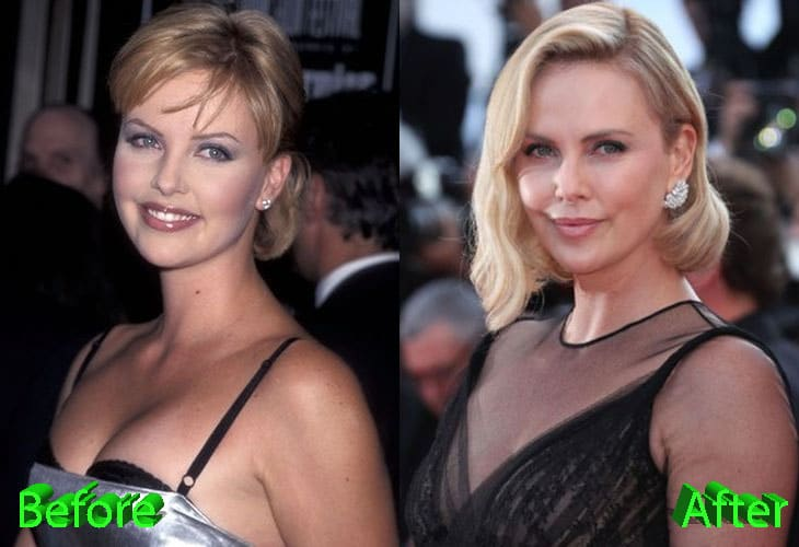 Charlize Theron Before and After Cosmetic Surgery