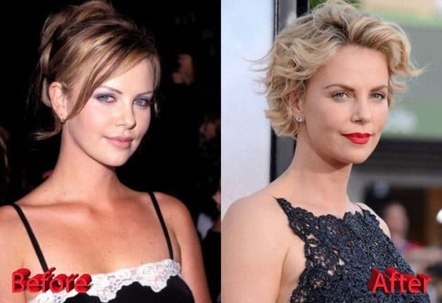 Charlize Theron Before and After Plastic Surgery 630x432
