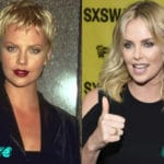 Charlize Theron Before and After Surgery Procedure 150x150