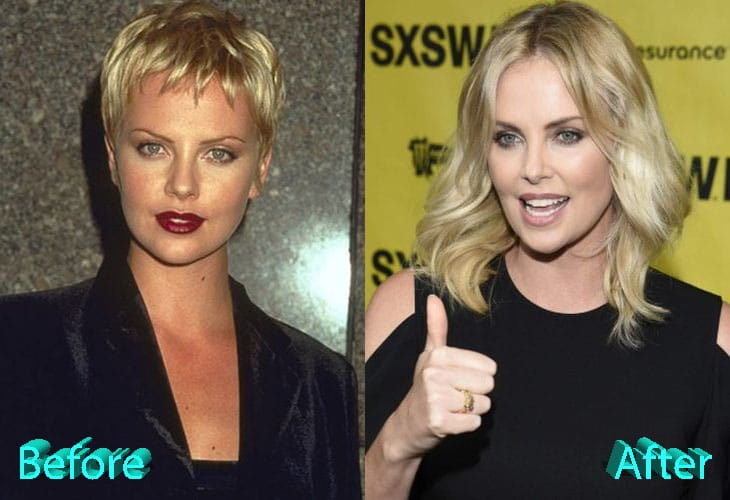 Charlize Theron Before and After Surgery Procedure