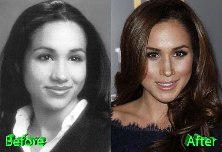 Meghan Markle Before and After Nose Job
