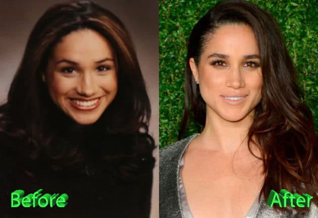 Meghan Markle Before and After Rhinoplasty Surgery 630x432