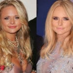 Miranda Lambert Before and After Cosmetic Surgery 150x150