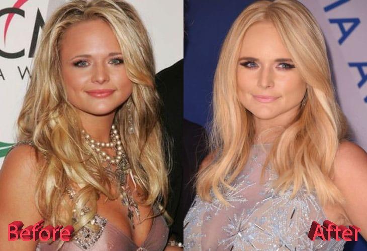 Miranda Lambert Before and After Cosmetic Surgery