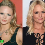 Miranda Lambert Before and After Surgery Procedure 150x150