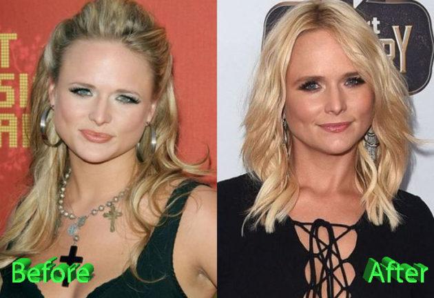 Miranda Lambert Before and After Surgery Procedure 630x432