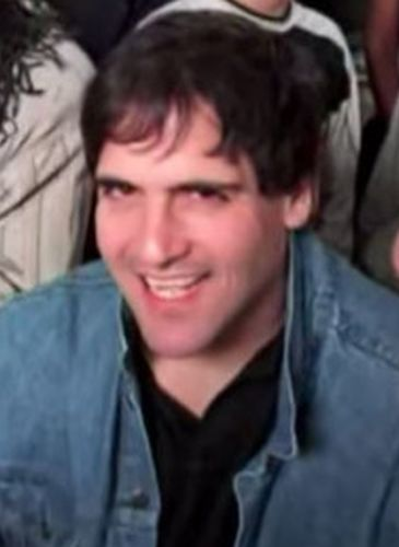 Mark Cuban Before Cosmetic Surgery
