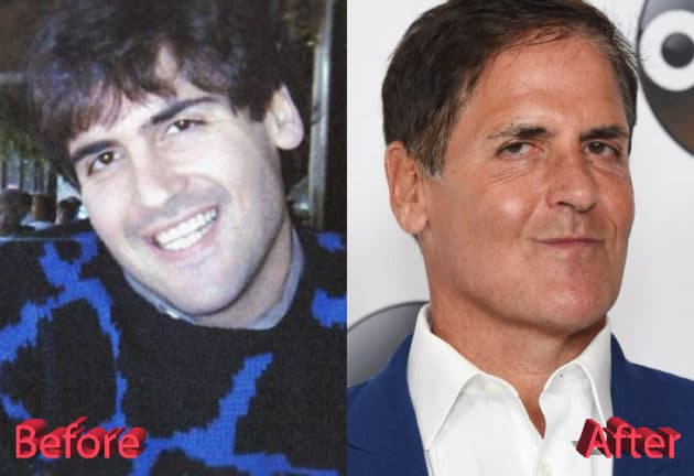 Mark Cuban Before and After Cosmetic Surgery 630x432