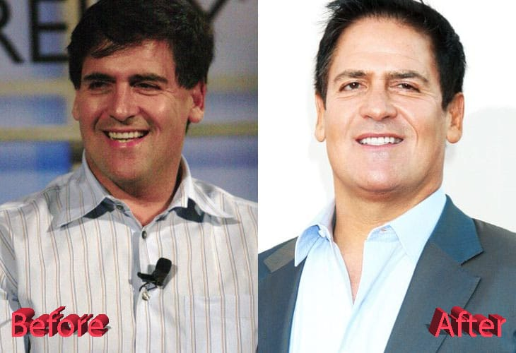 Mark Cuban Before and After Plastic Surgery