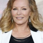 Cheryl Ladd After Cosmetic Surgery 150x150