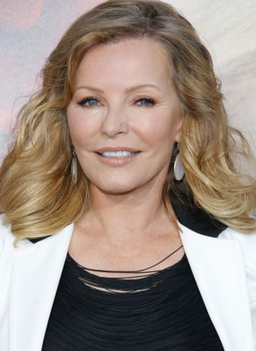 Cheryl Ladd After Cosmetic Surgery