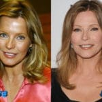 Cheryl Ladd Before and After Cosmetic Surgery 150x150