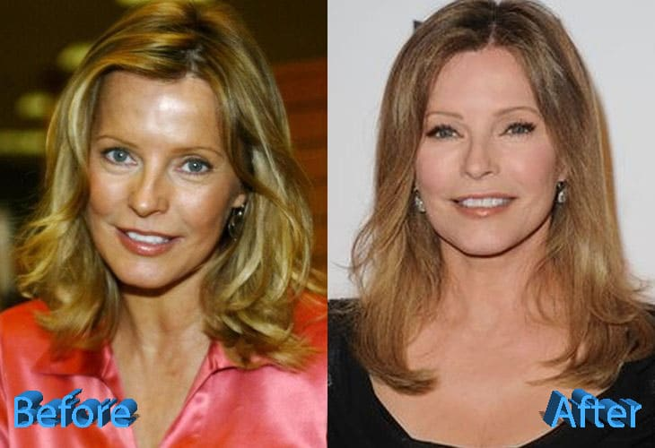 Cheryl Ladd Before and After Cosmetic Surgery