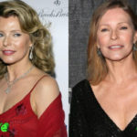 Cheryl Ladd Before and After Plastic Surgery 150x150