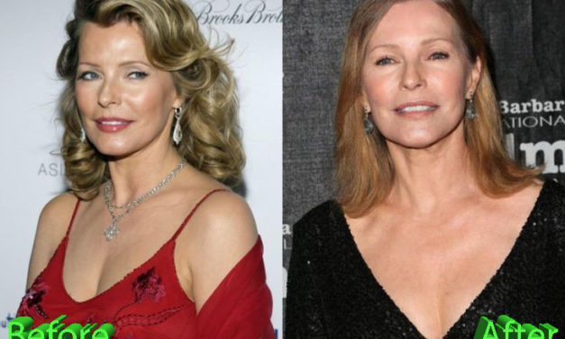 Cheryl Ladd Plastic Surgery: Still A Classic Beauty