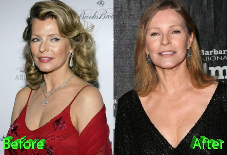 Cheryl Ladd Plastic Surgery: Still A Classic Beauty