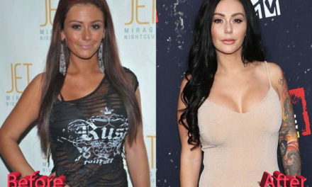 Jwoww Plastic Surgery: Thumbs Up Or Thumbs Down?