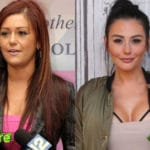 Jwoww Before and After Plastic Surgery 150x150