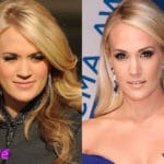 Carrie Underwood Before and After Cosmetic Surgery 150x150