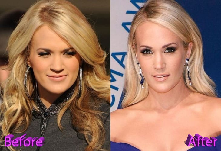 Carrie Underwood Before and After Cosmetic Surgery
