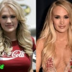 Carrie Underwood Before and After Plastic Surgery 150x150