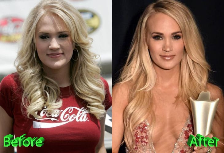 Carrie Underwood Plastic Surgery: A Beauty After the Accident