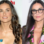 Demi Moore Before and After Cosmetic Surgery 150x150