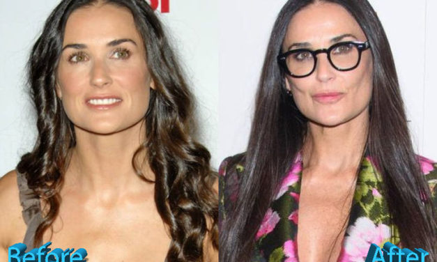 Demi Moore Plastic Surgery: All Natural, Really, Demi?