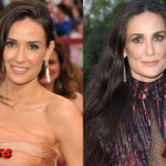 Demi Moore Before and After Plastic Surgery 150x150