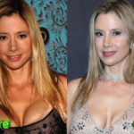 Mira Sorvino Before and After Cosmetic Surgery 150x150