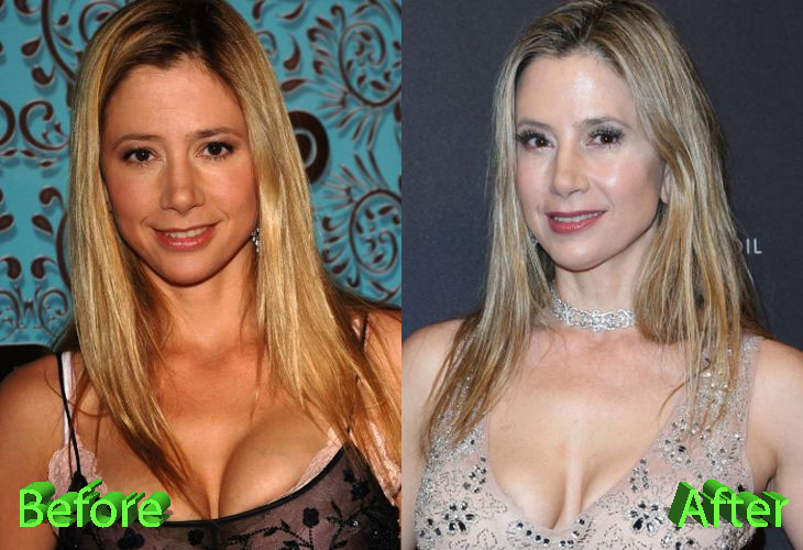 Mira Sorvino Before and After Cosmetic Surgery