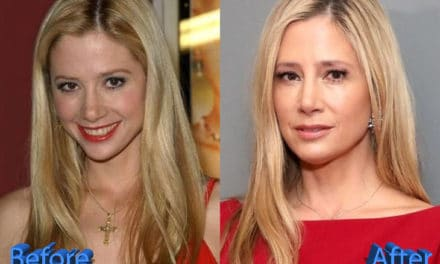 Mira Sorvino Plastic Surgery: Rumors and Gossips About It