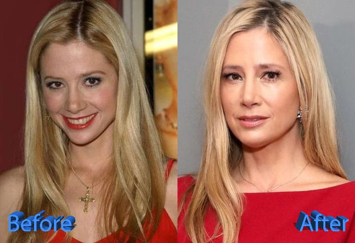 Mira Sorvino Before and After Plastic Surgery