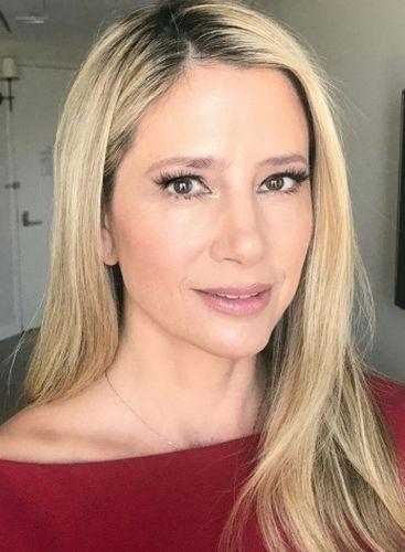 Mira Sorvino Plastic Surgery Rumors