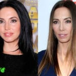 Whitney Cummings Before and After Cosmetic Surgery 150x150