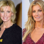 Faith Hill Before and After Cosmetic Surgery 150x150