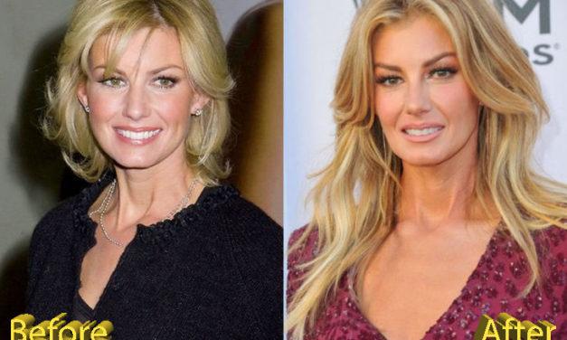 Faith Hill Plastic Surgery: Country Star Beautiful Look