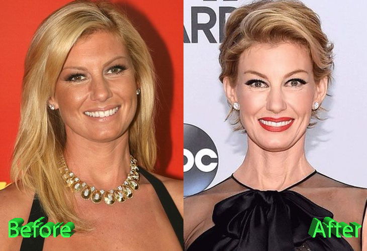 Faith Hill Before and After Plastic Surgery